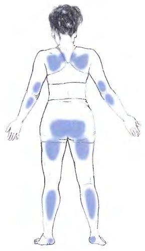 Синим обозначены участки, на которые приходится нагрузка при положении лежа на спине