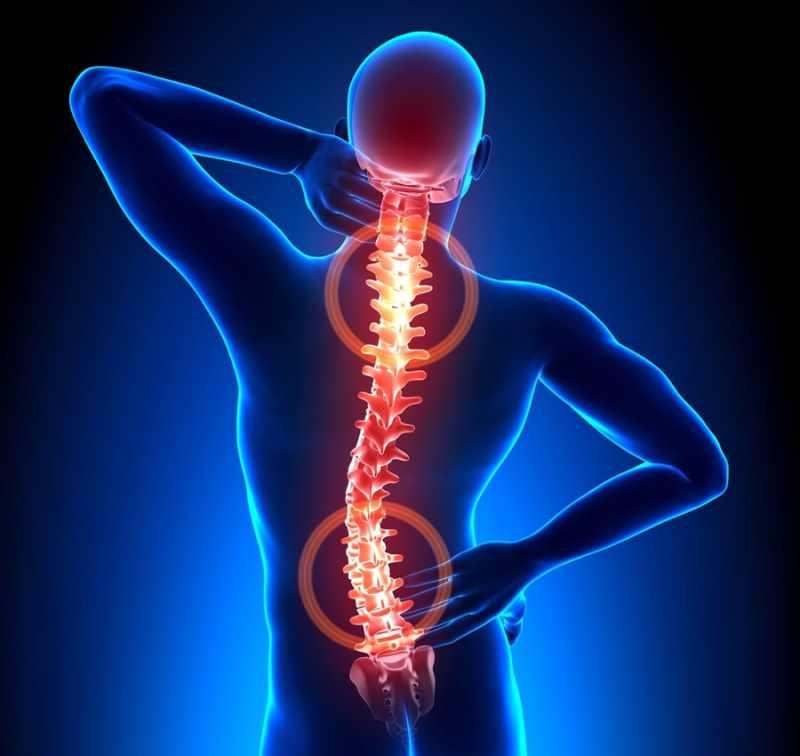 Картинка последствия остеохондроза позвоночника