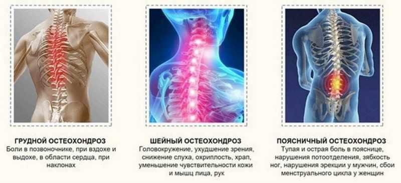 3 вида остеохондроза и их симптомы