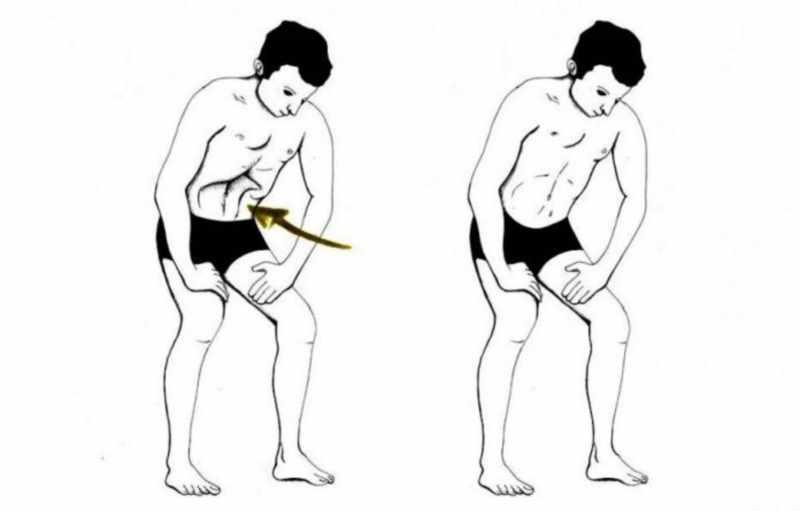 Оздоровительная техника уддияна бандха