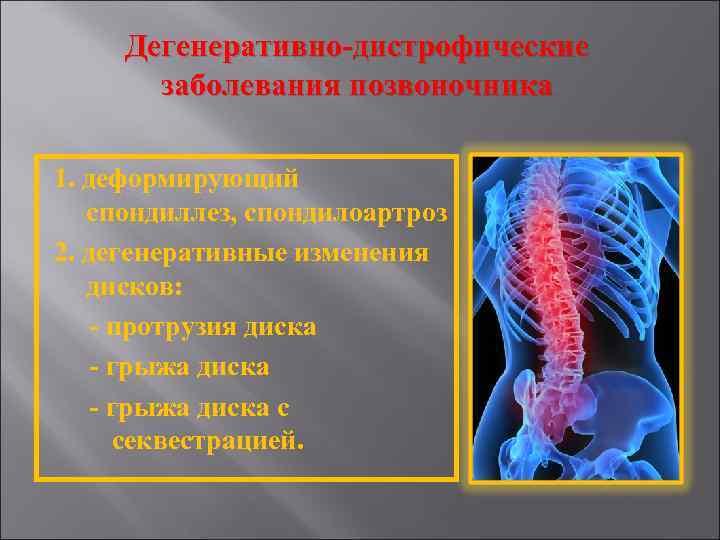 Фото перечень дегенеративно-дистрофических заболеваний