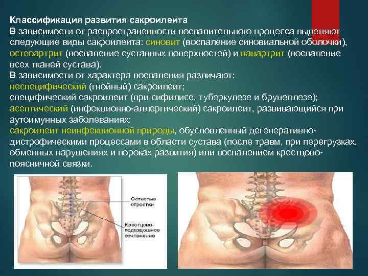 Причины боли - воспаление подвздошно- крестцового сочленения