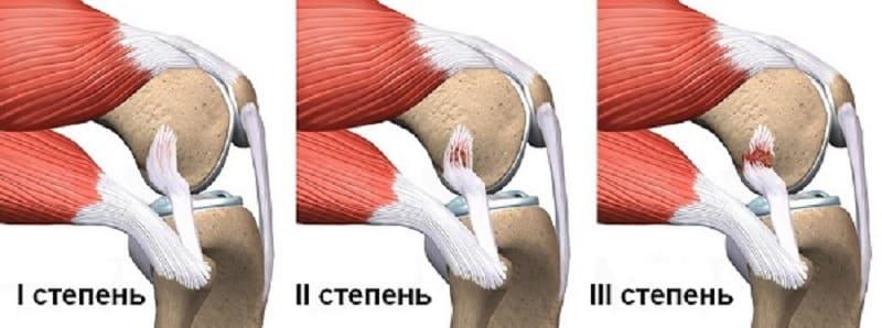 Степени повреждения коленного сустава