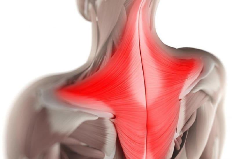 Мышечное напряжение шейного отдела позвоночника