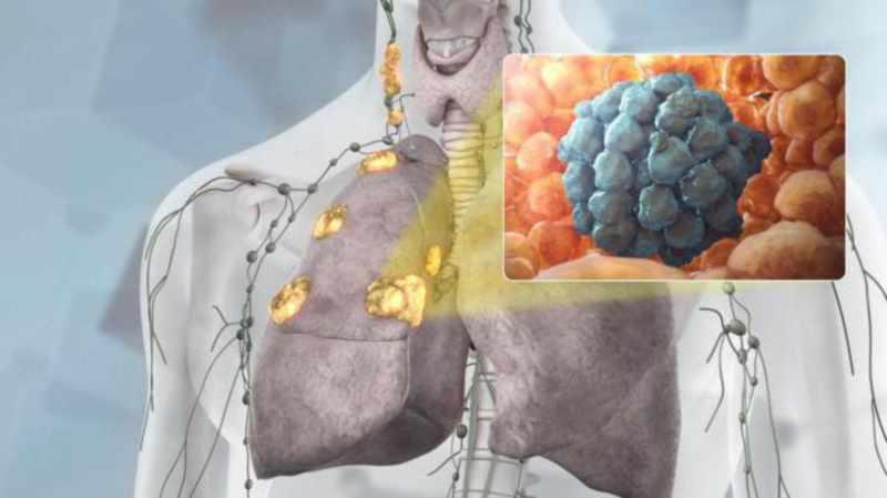 Фото онкология - противопоказания к уджайи практике