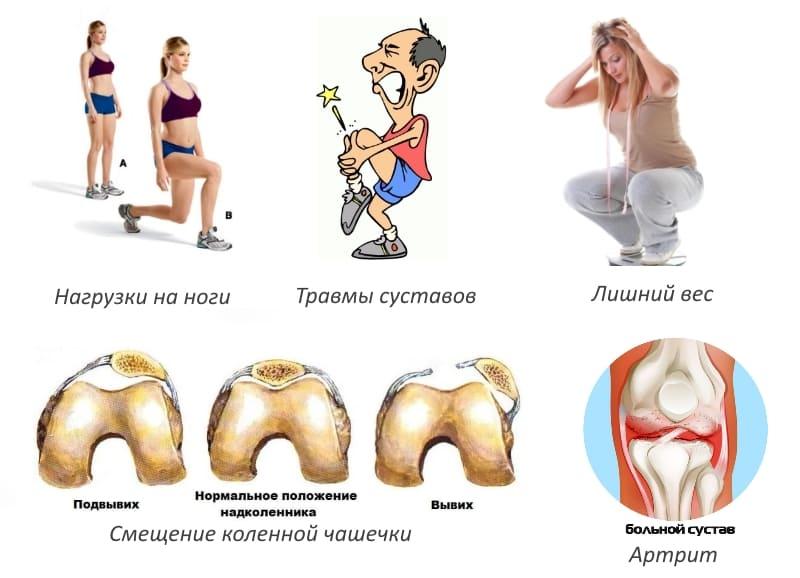 Причины травмирования коленных суставов