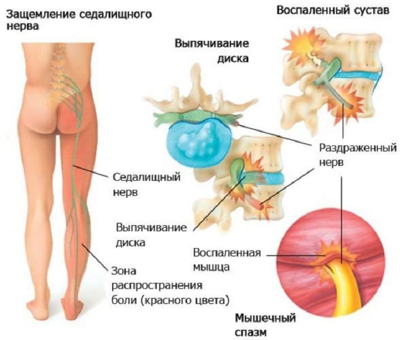 Защемление седалищного нерва, влекущее мышечное напряжение
